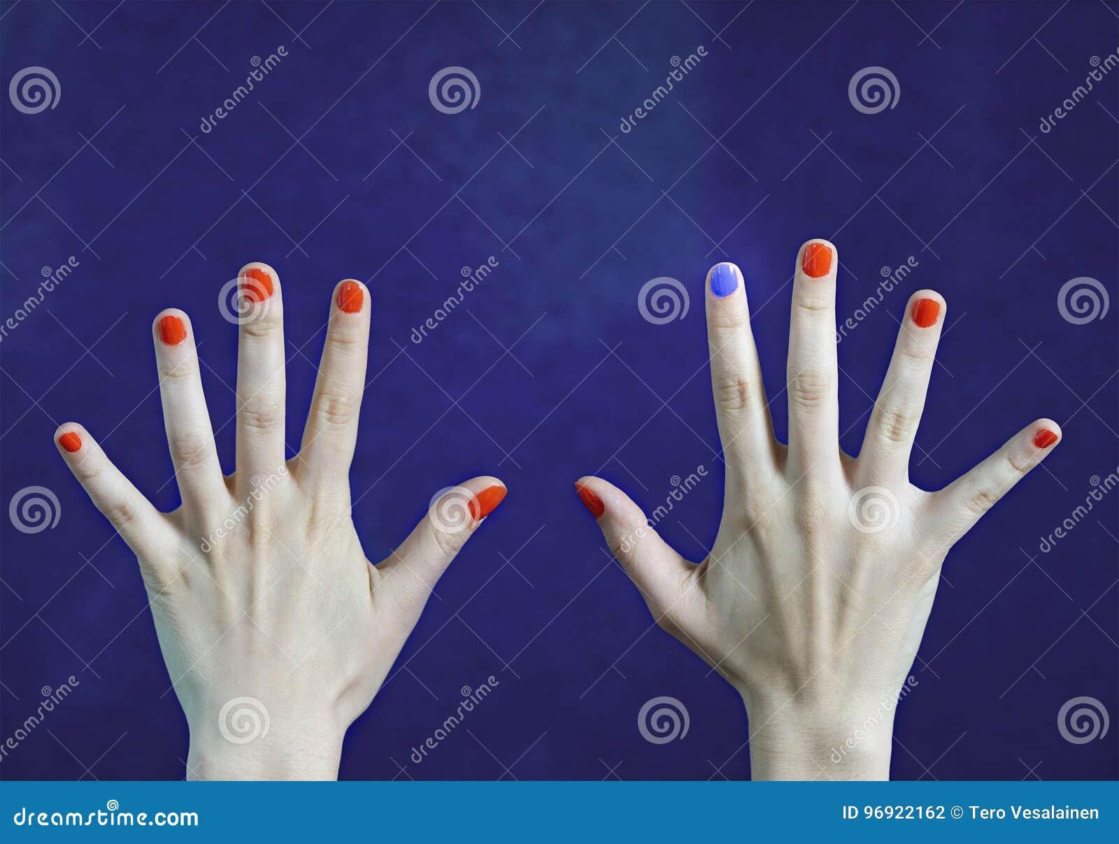 Un Diverso Color Del Clavo En Finger En Manos Caucásicas