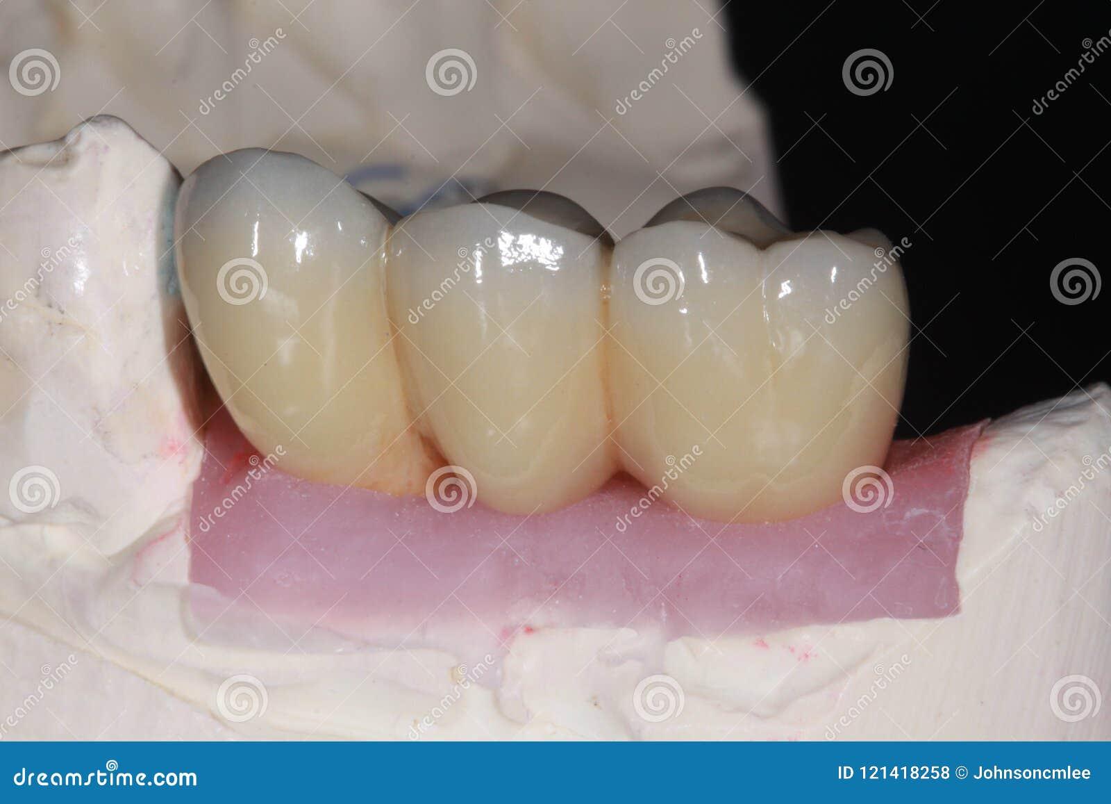 Un fusible de porcelaine pour metal le pont dentaire avec la haute porcelaine de translucidité qui imitent la couleur naturelle d