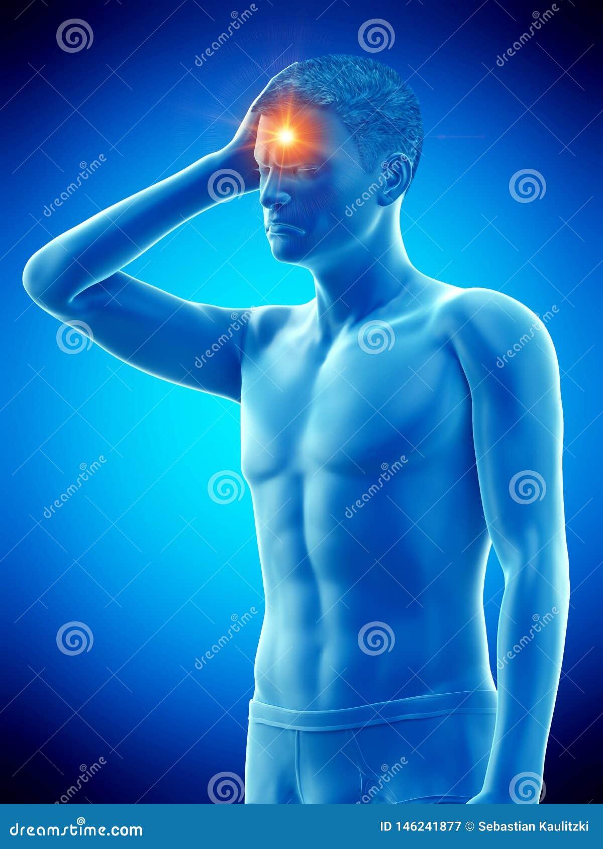 Un hombre que tiene dolor de cabeza