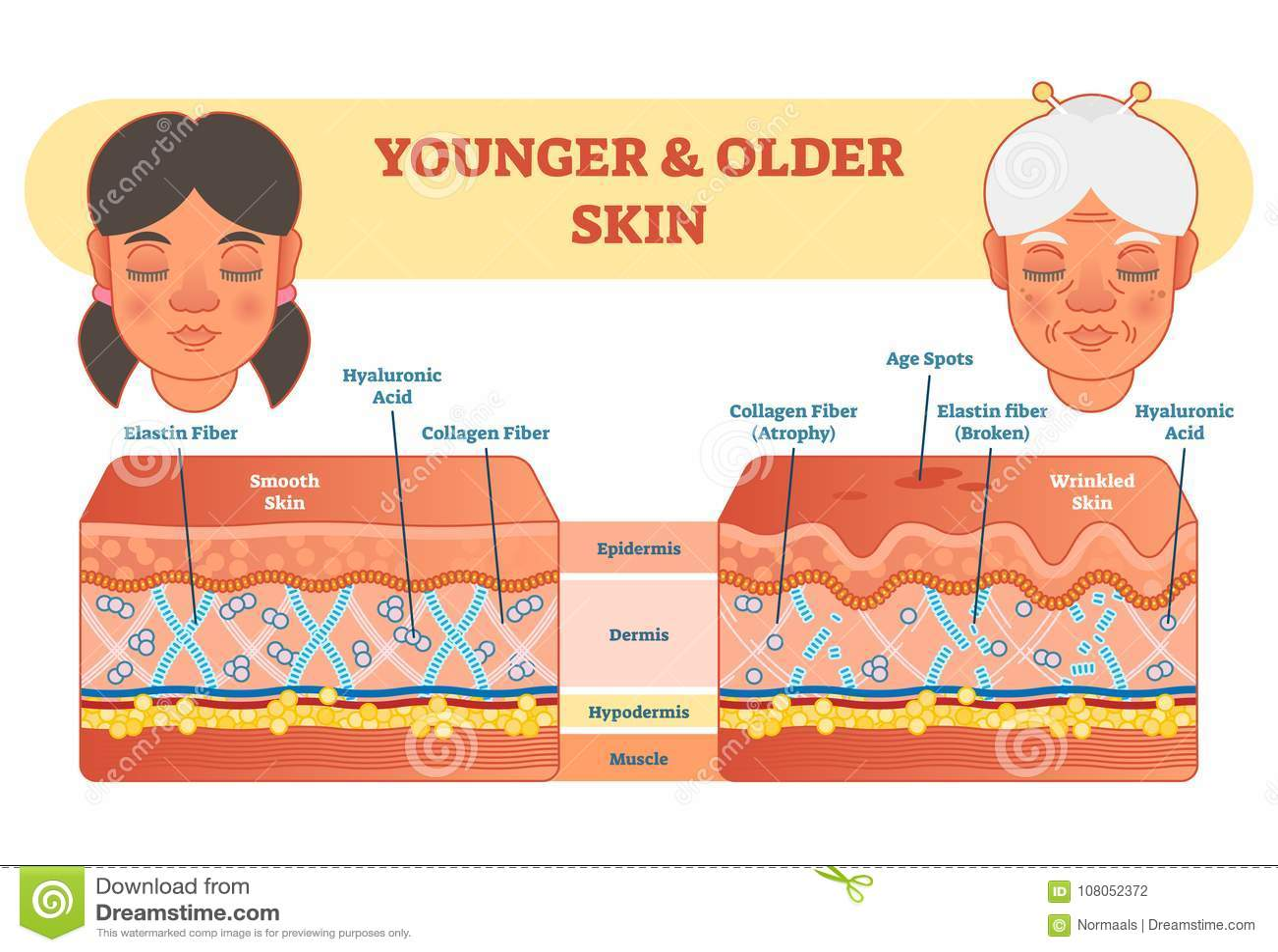 Un Más Viejo Y Más Joven Diagrama De La Comparación De La Piel ...
