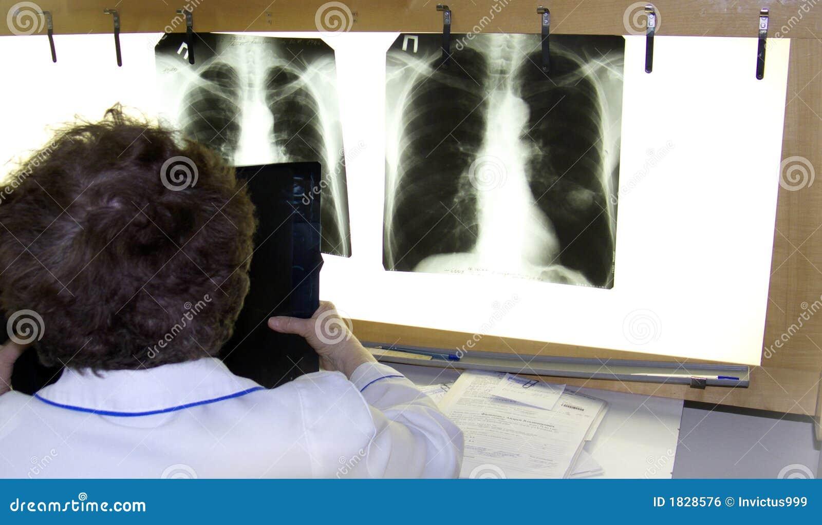 Un medico esamina i raggi X