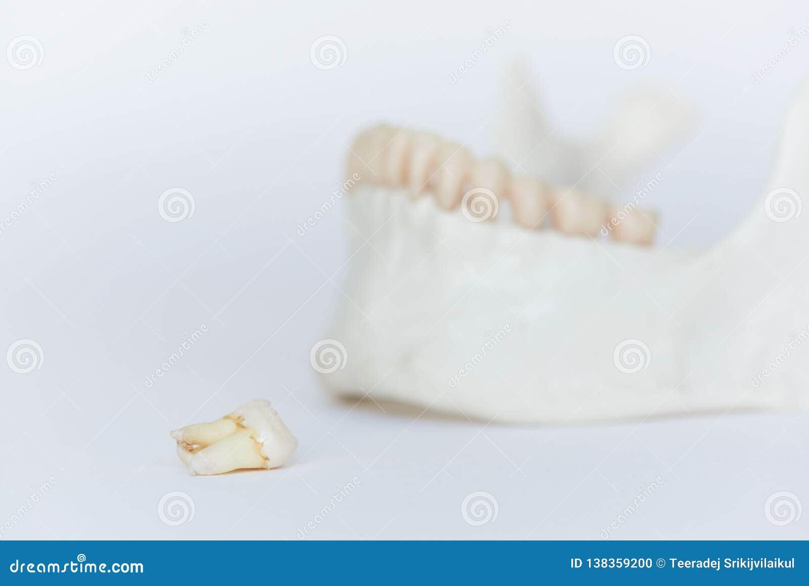Un modello molare estratto della mandibola del ond del dente di saggezza