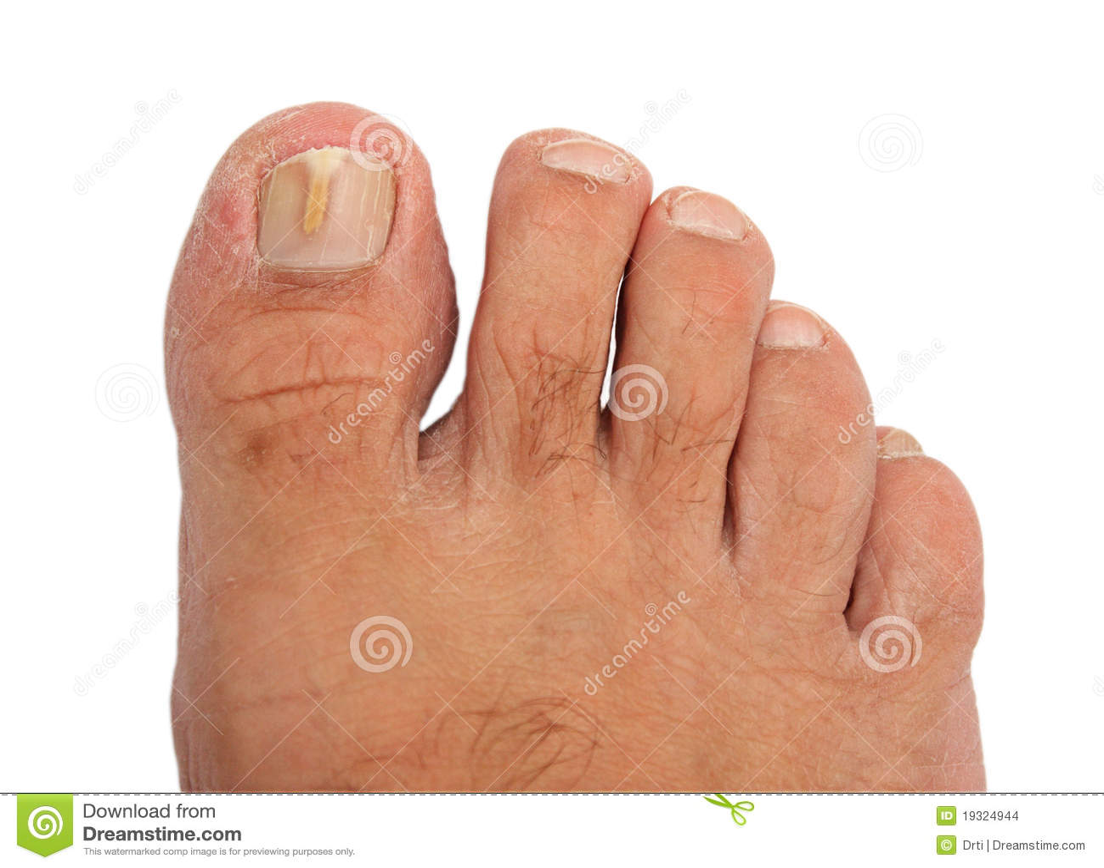 Fungo umido su dita del piede