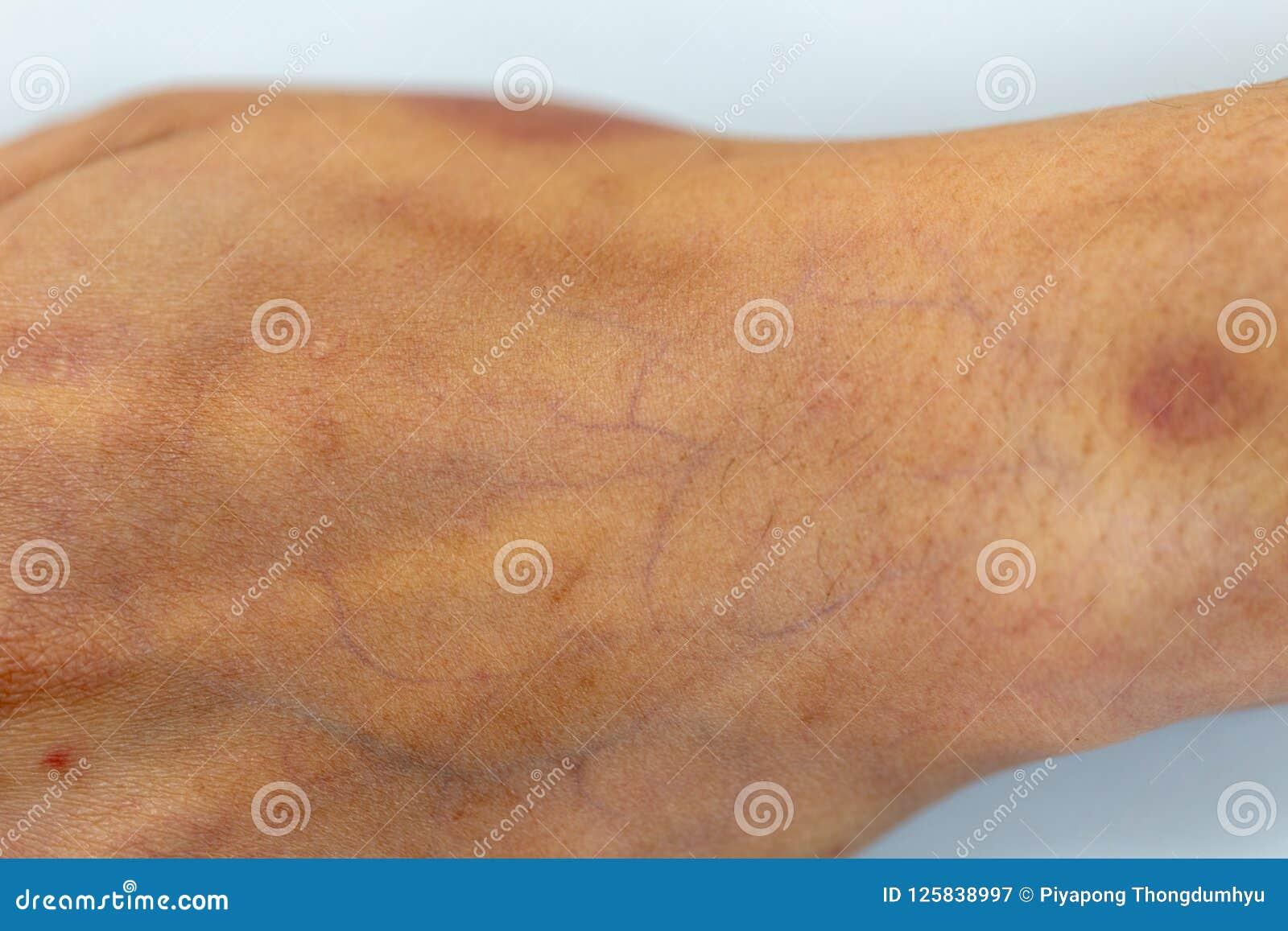 Una comprobación del tejido, nervios, tendones as mano