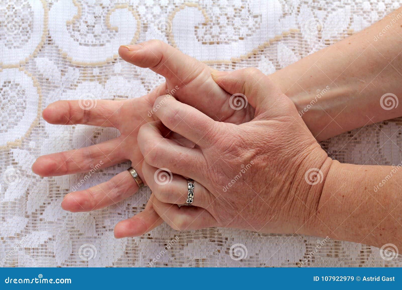 Una donna con la malattia del ` s di Parkinson ha suo stringere delle mani