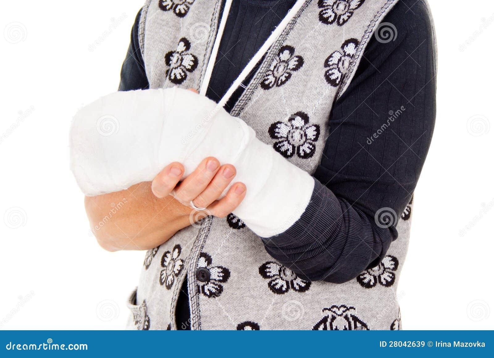 Una donna con un braccio rotto
