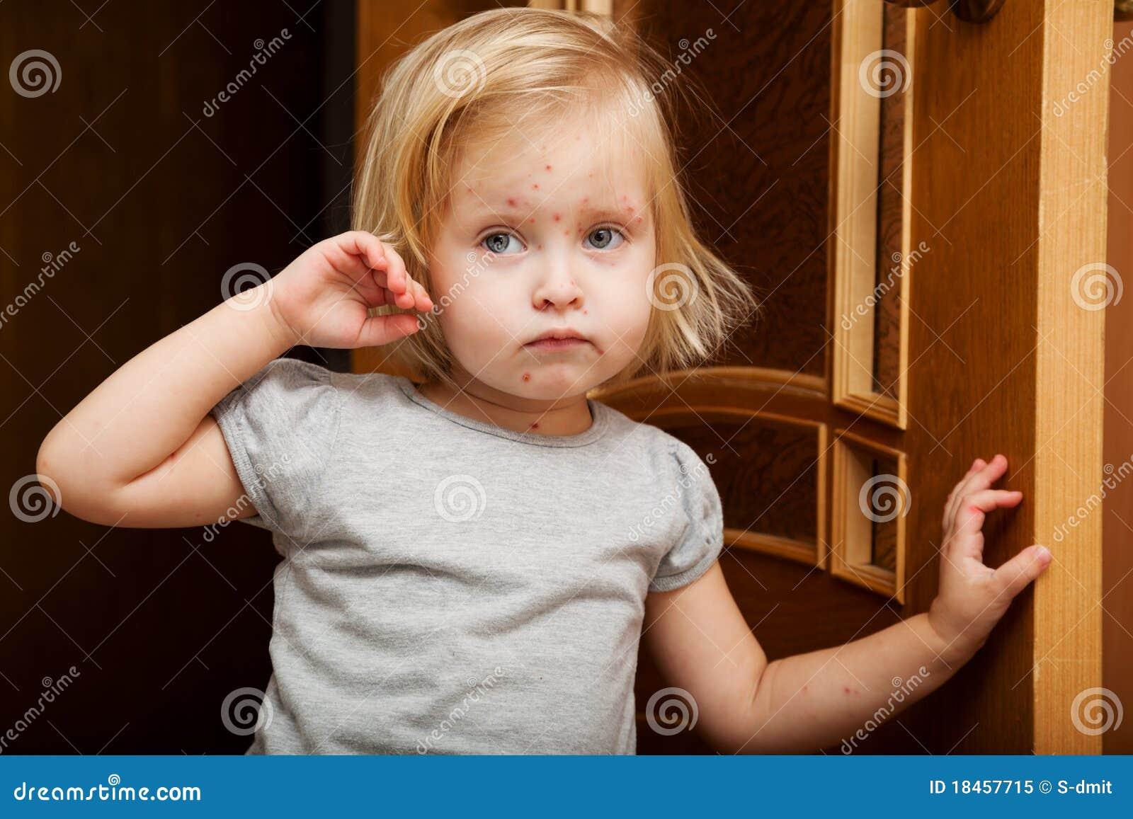 Una ragazza ammalata è vicino al portello