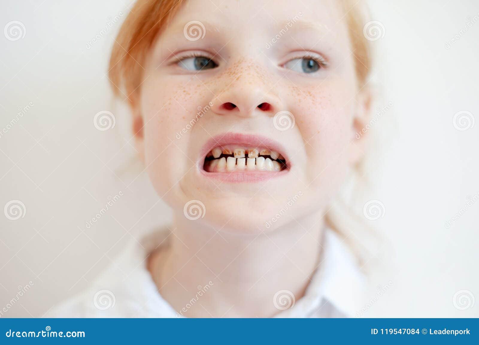 Une fille avec la carie dentaire