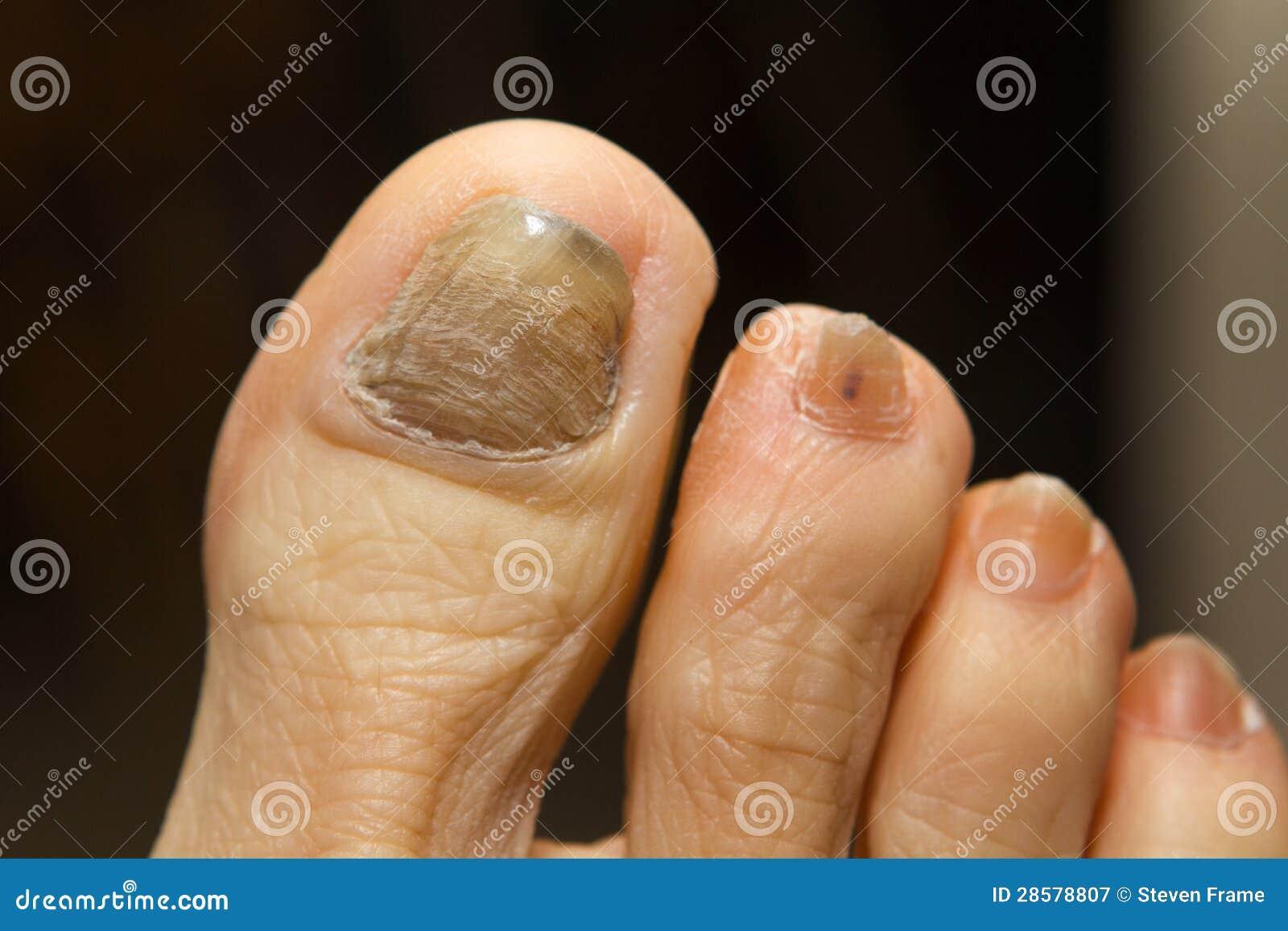 Fungo tra le dita che sopportano le ragioni e il trattamento