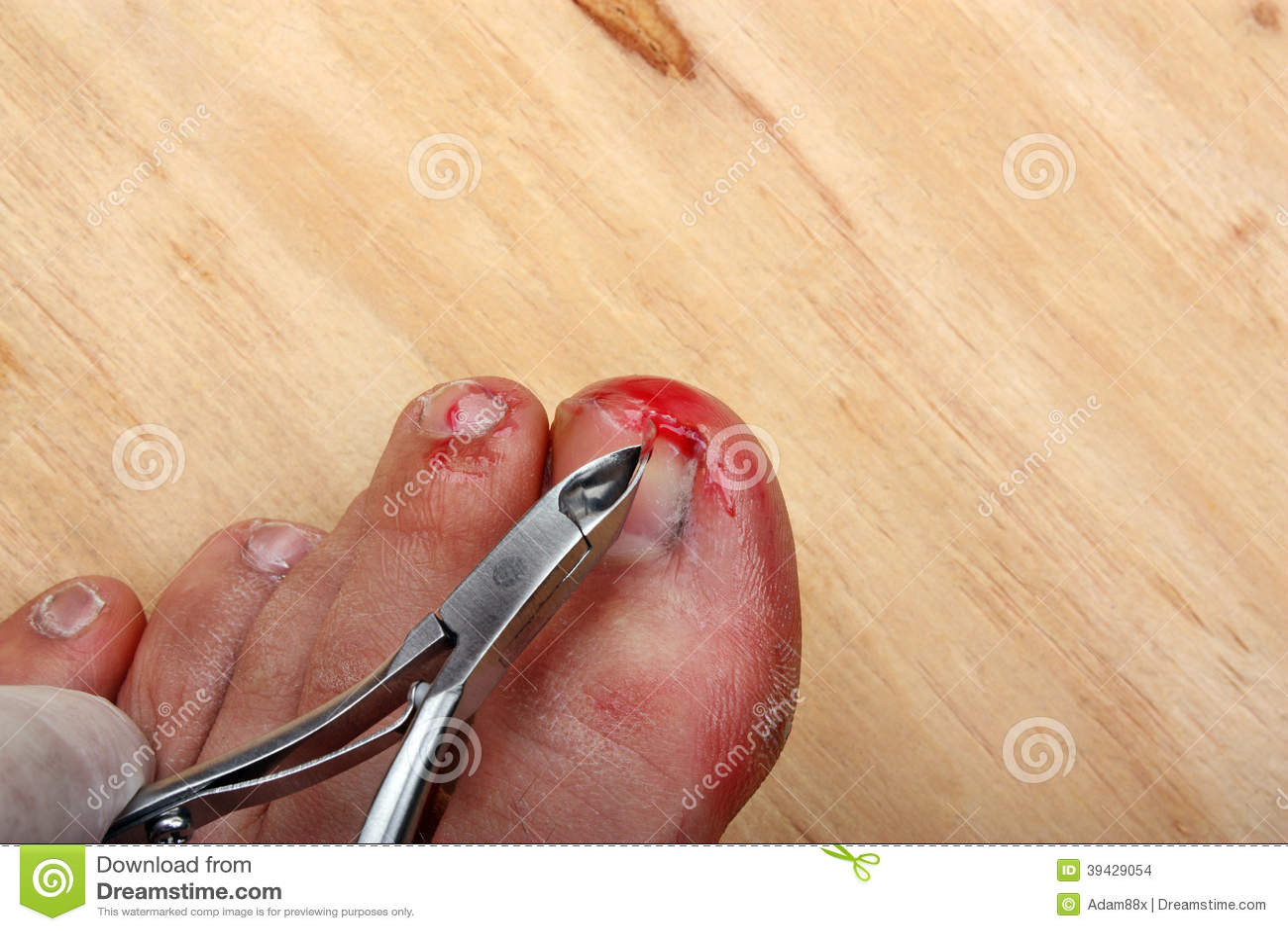 Come togliere un prurito di gambe a un fungo