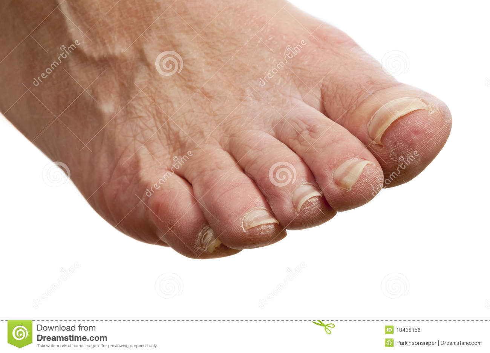 Unhealty uncared ногой