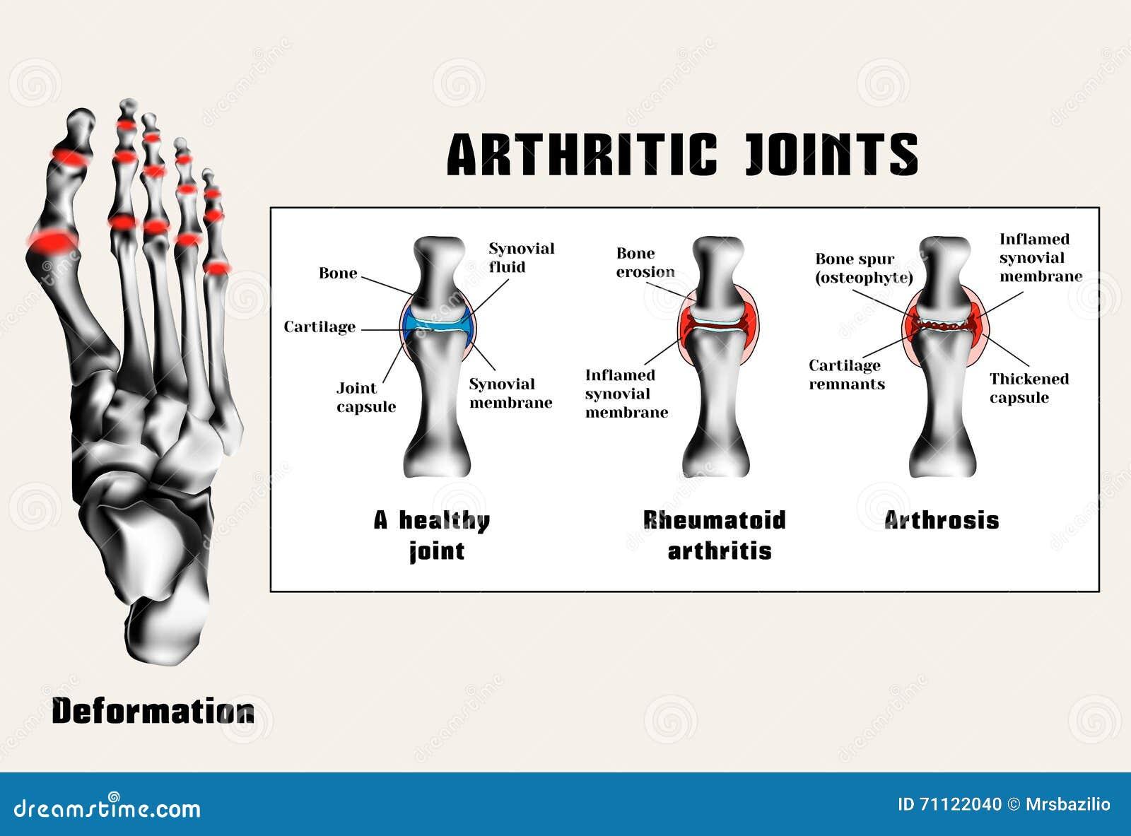 Unire artritici