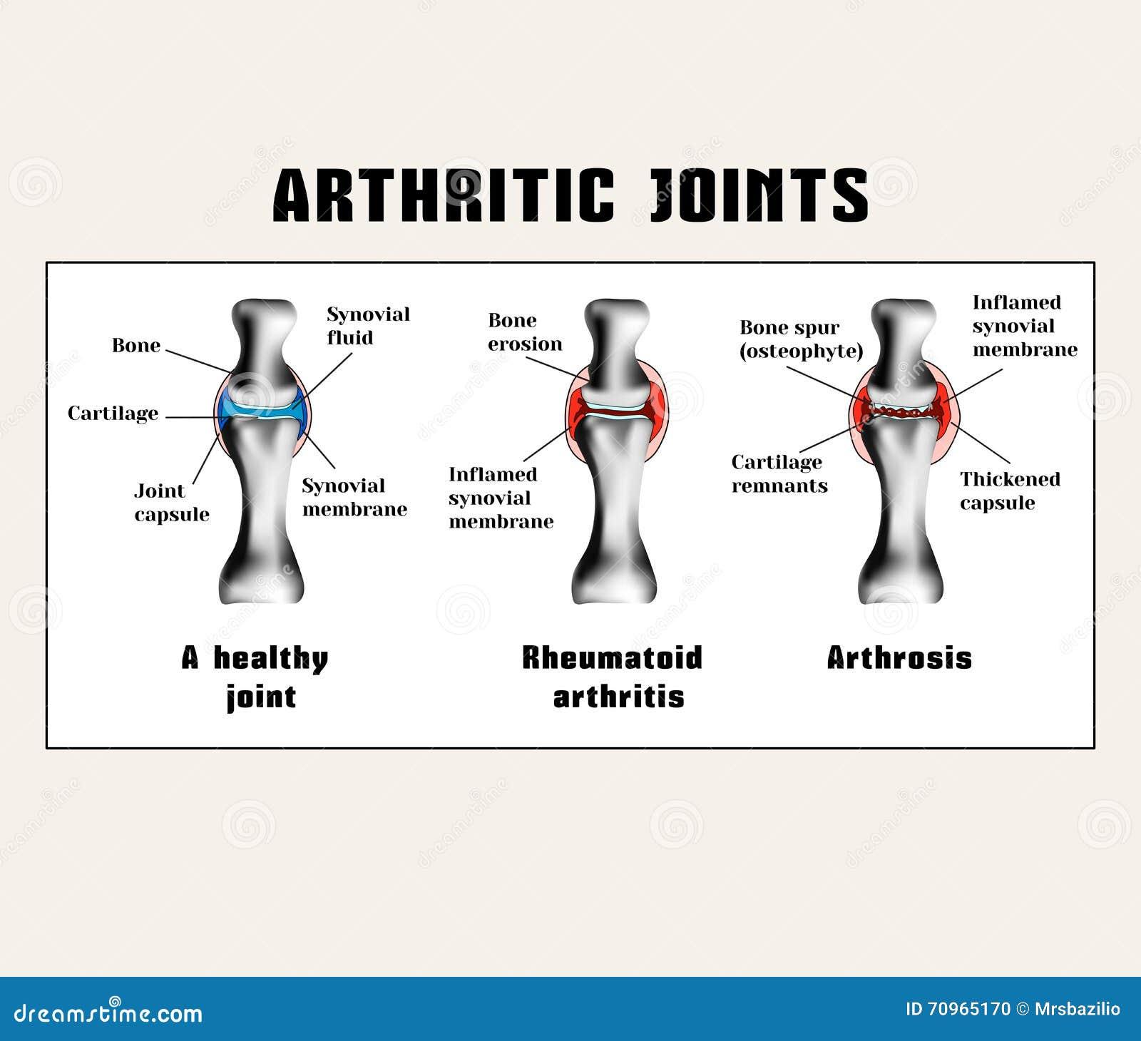 Unire artritici (artrite reumatoide, artrosi (osteoartrite))