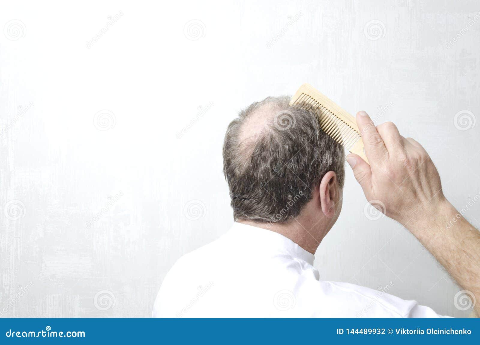 Uomo che fa i suoi capelli con il pettine di legno Uomo con la parte posteriore della testa calva Concetto di perdita di capelli