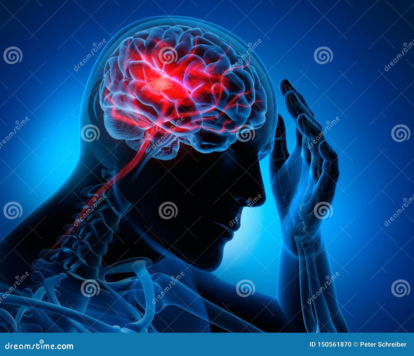 Uomo con i sintomi del colpo del cervello