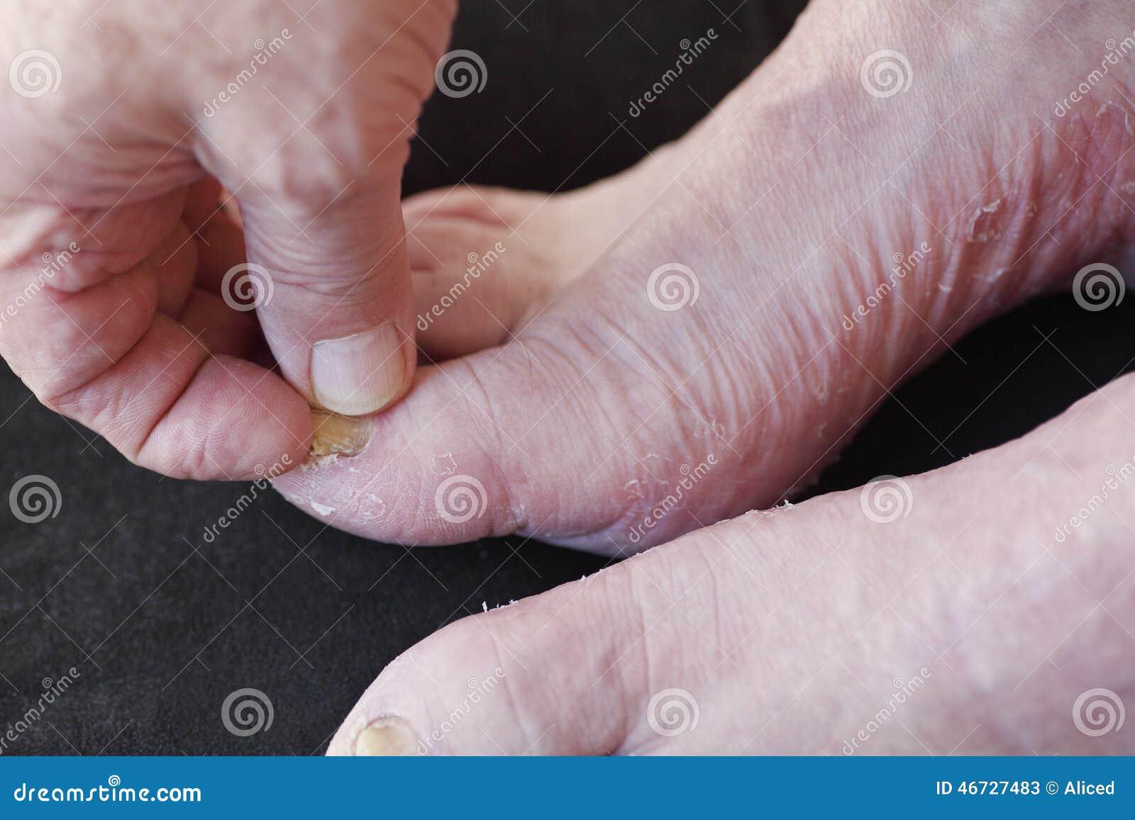Fungo su ununghia un pollice di gamba