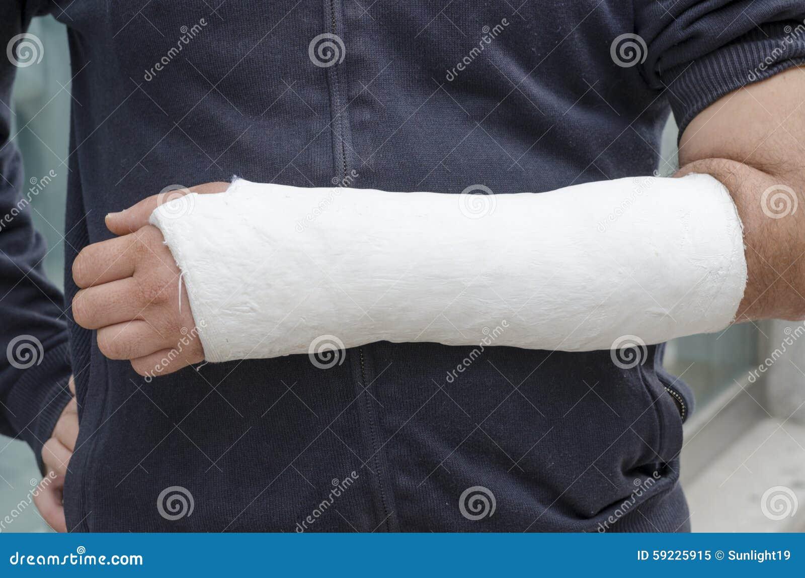 Uomo con il suo braccio rotto Braccio in colata