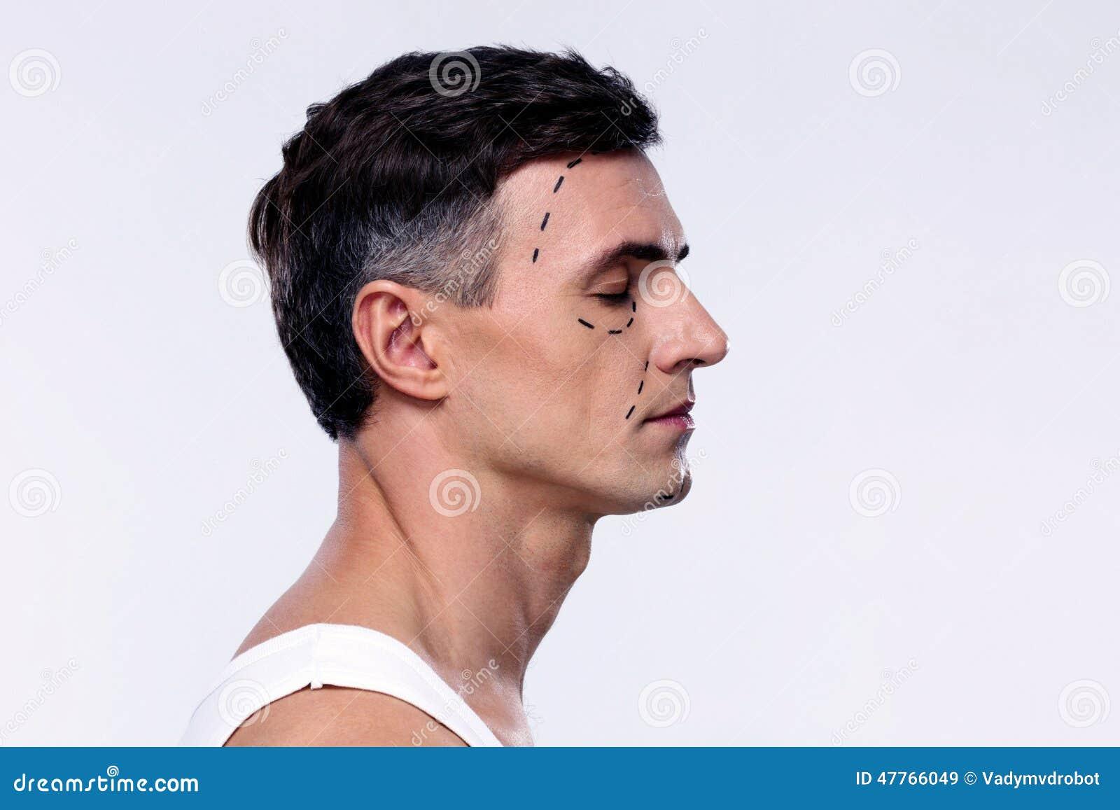 Uomo segnato con le linee per chirurgia plastica