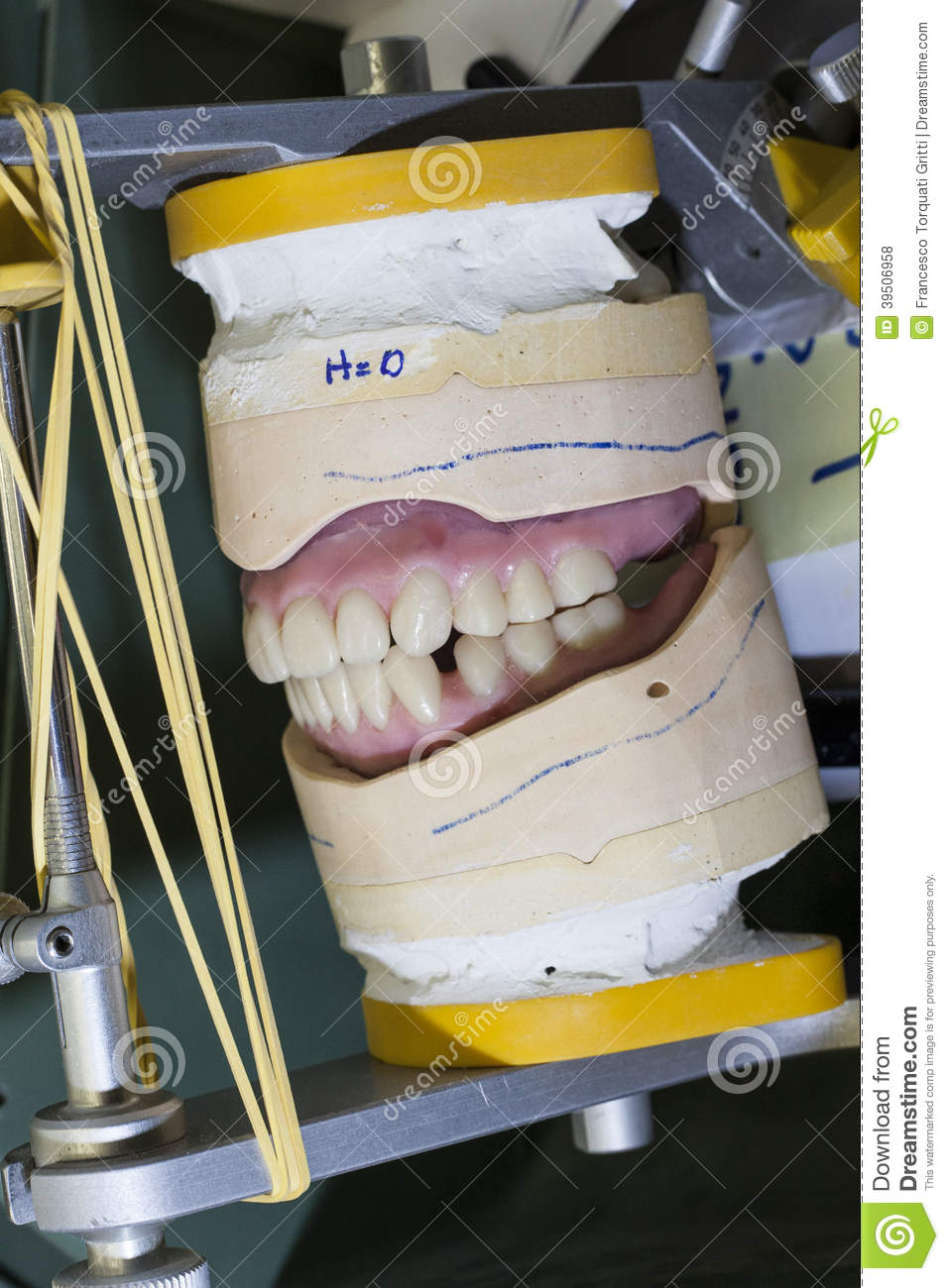 Upper and lower teeth red braces on gypsum modell