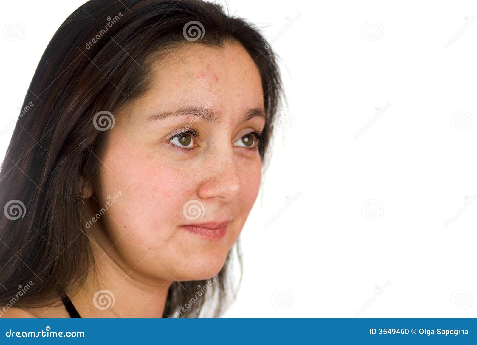 Uppriven kvinna för acne