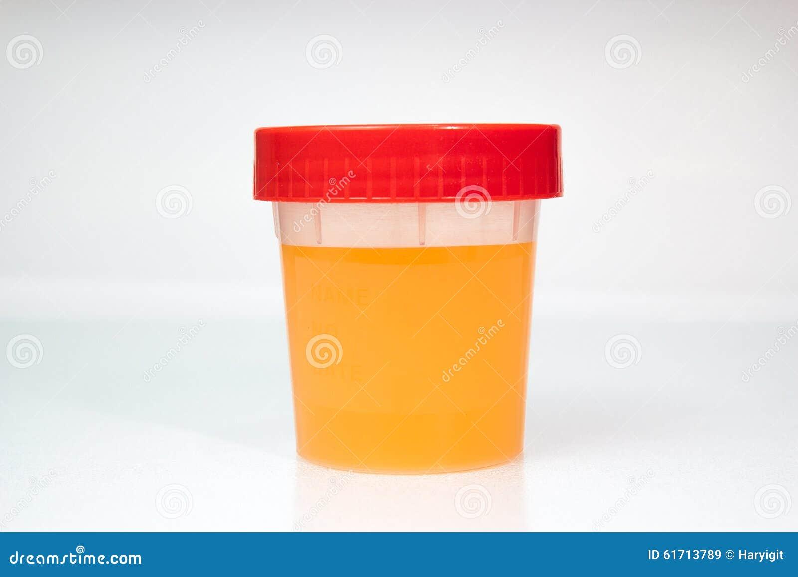 dark orange urination