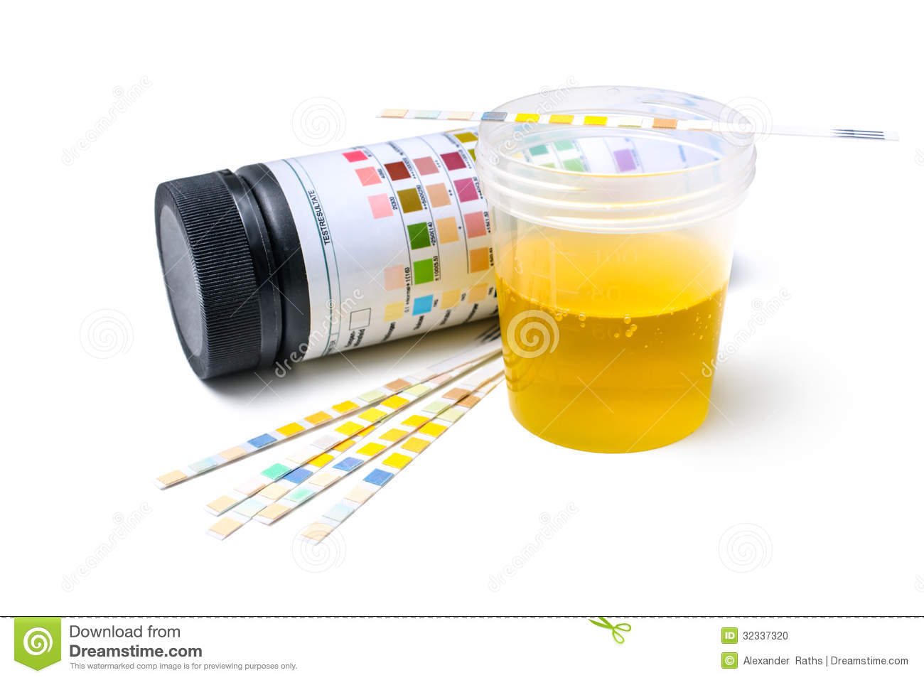 how to read urine test strips