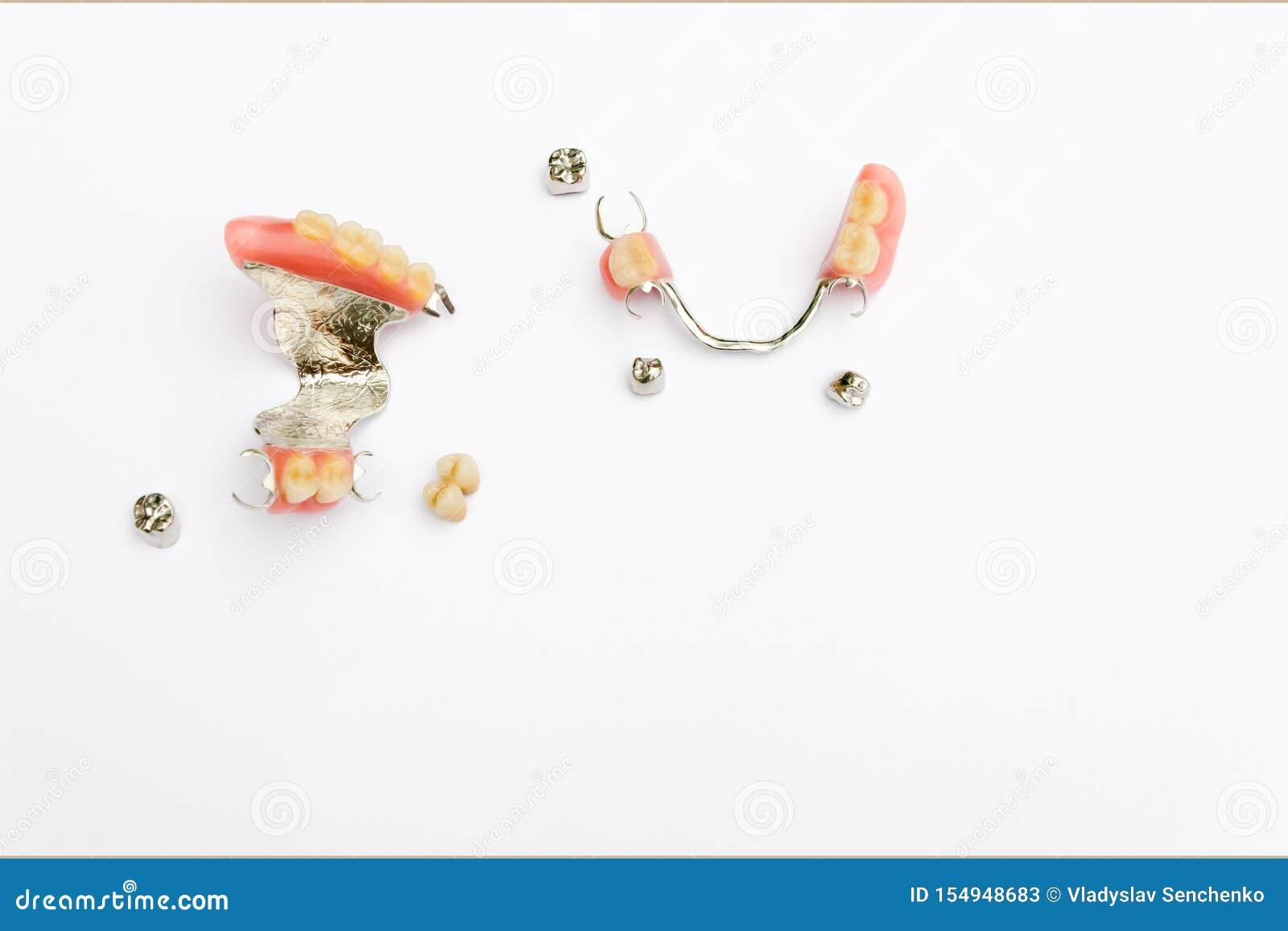Usuwalny przepięcia prosthesis na wierzchu i obniża szczękę z metalu i metalu koronami