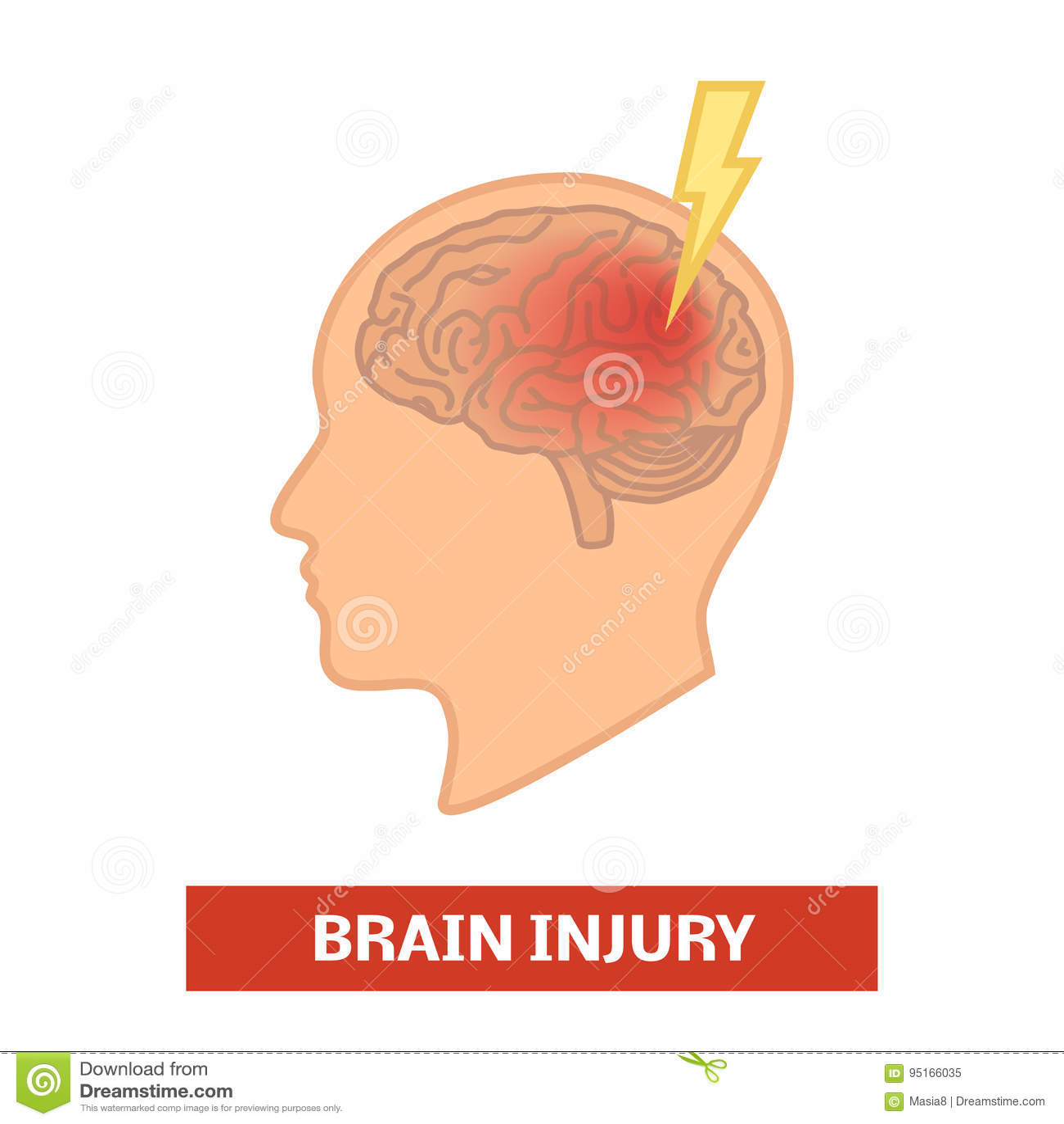 Uszkodzenia mózgu pojęcie