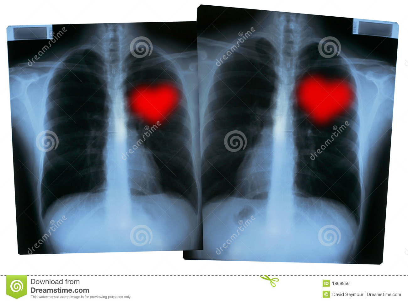 Valentines X Rays Love Hearts Royalty Free Stock Image
