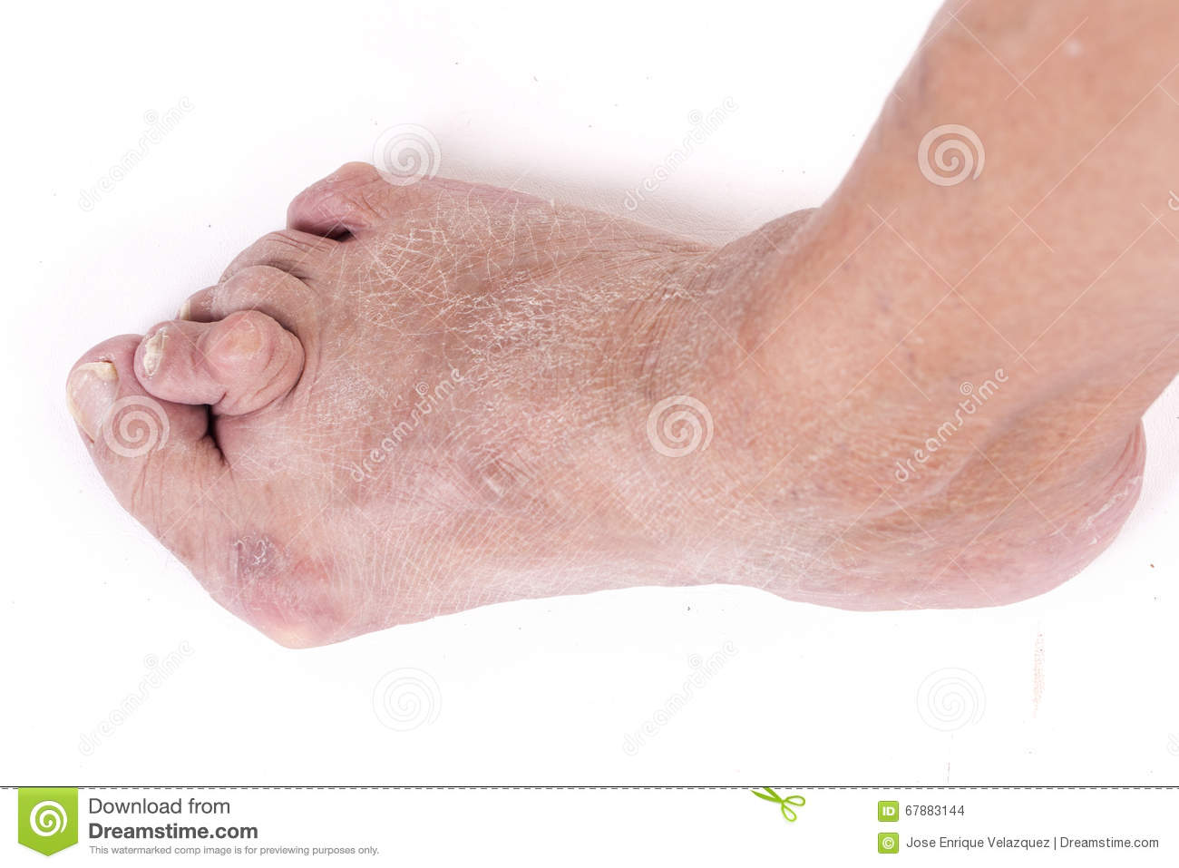 Valgus do abductus de Hallux