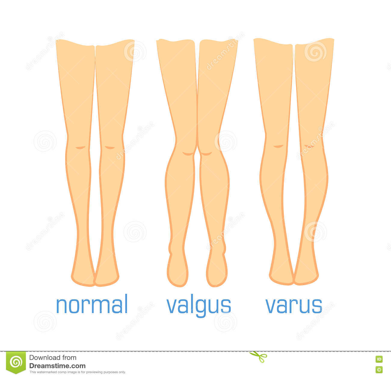 Valgus Varus And Normal Stock Vector - Image: 75576270