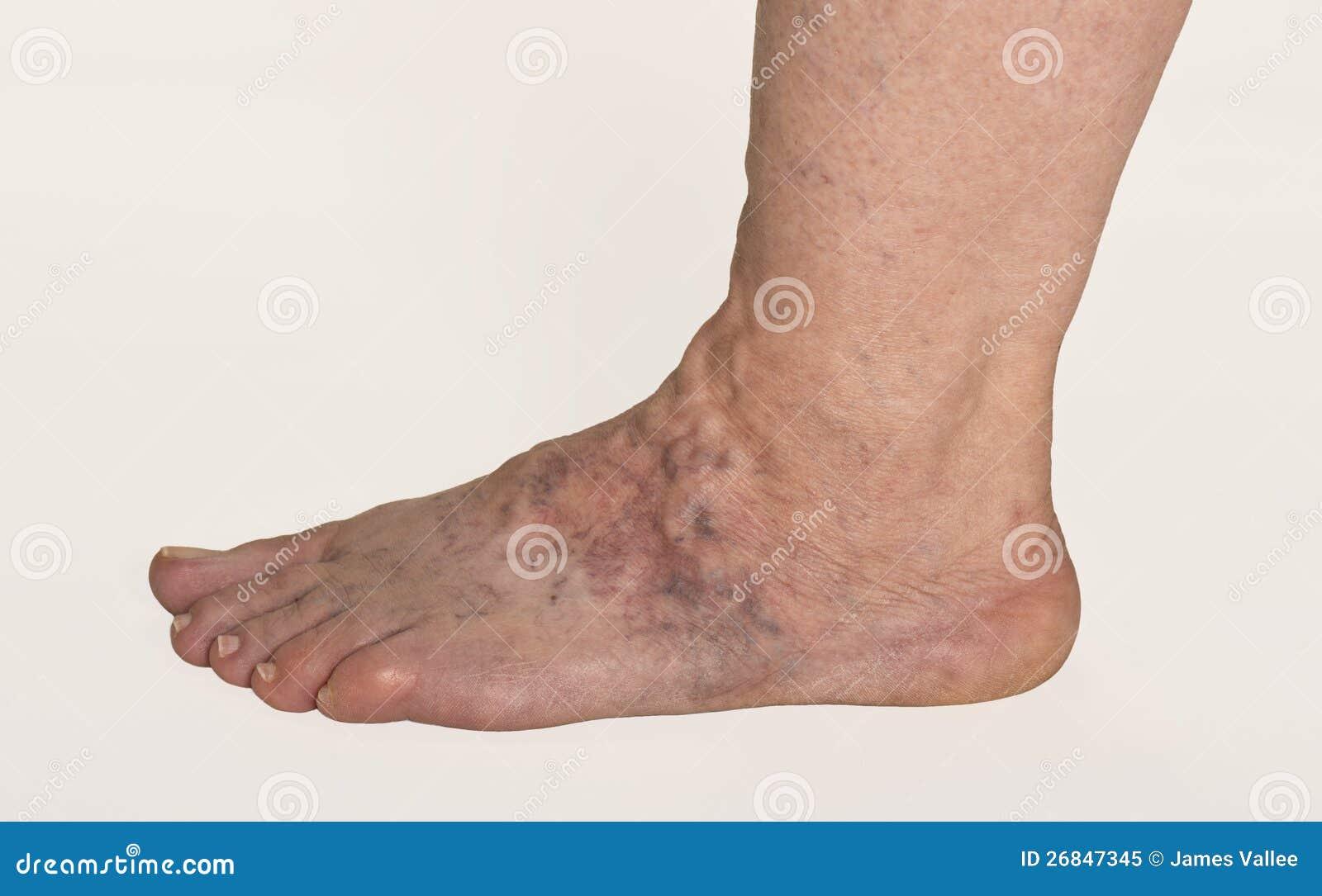 varices de pie