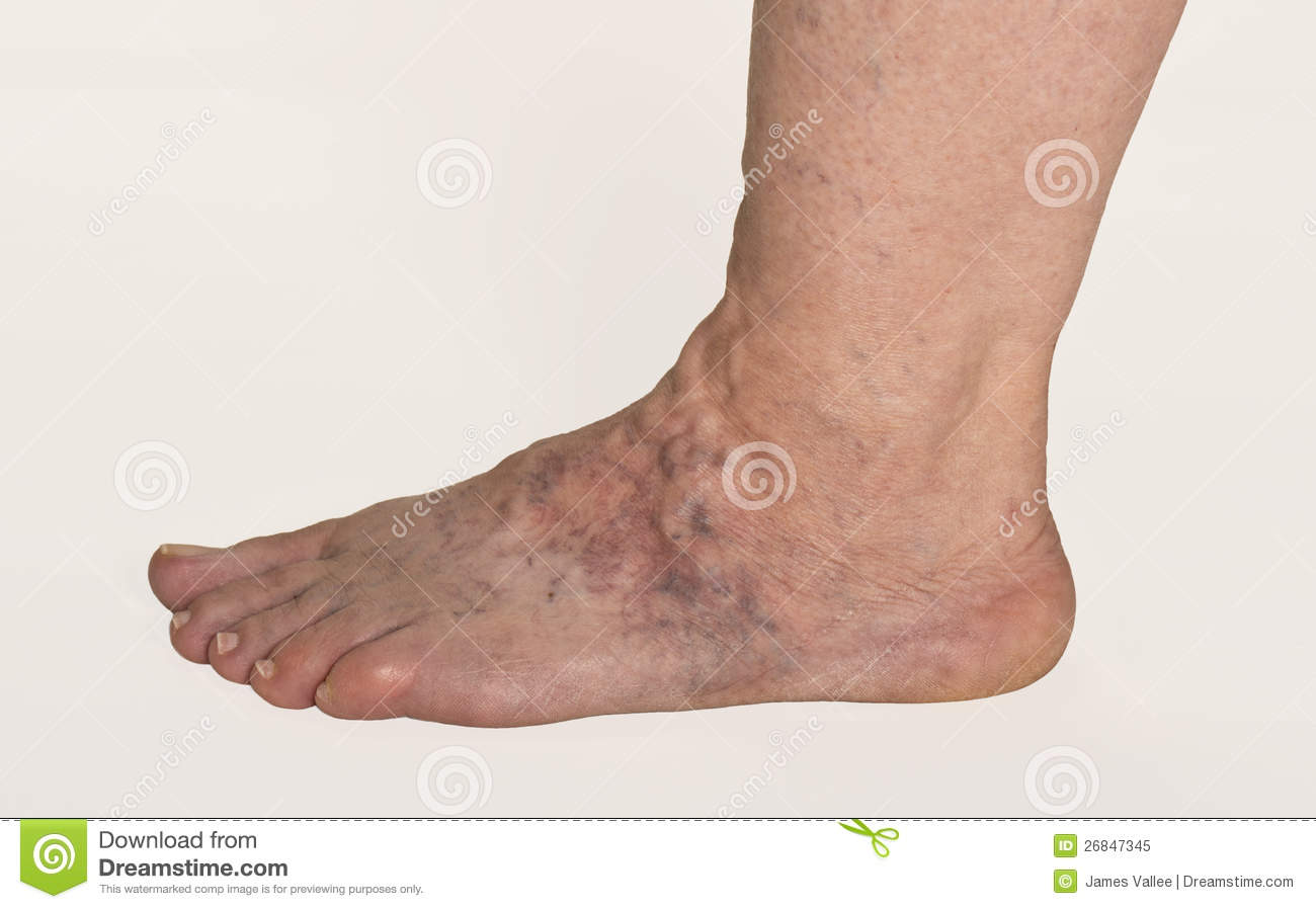Varicose Veins Stock Image Image Of Foot Ankle Toes 26847345