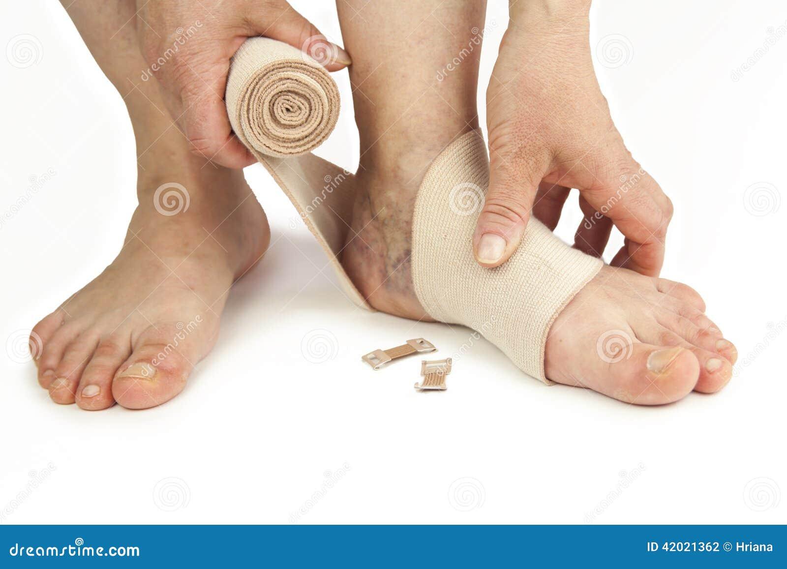 Cum să bandajezi picioarele cu vene varicoase cu bandaje