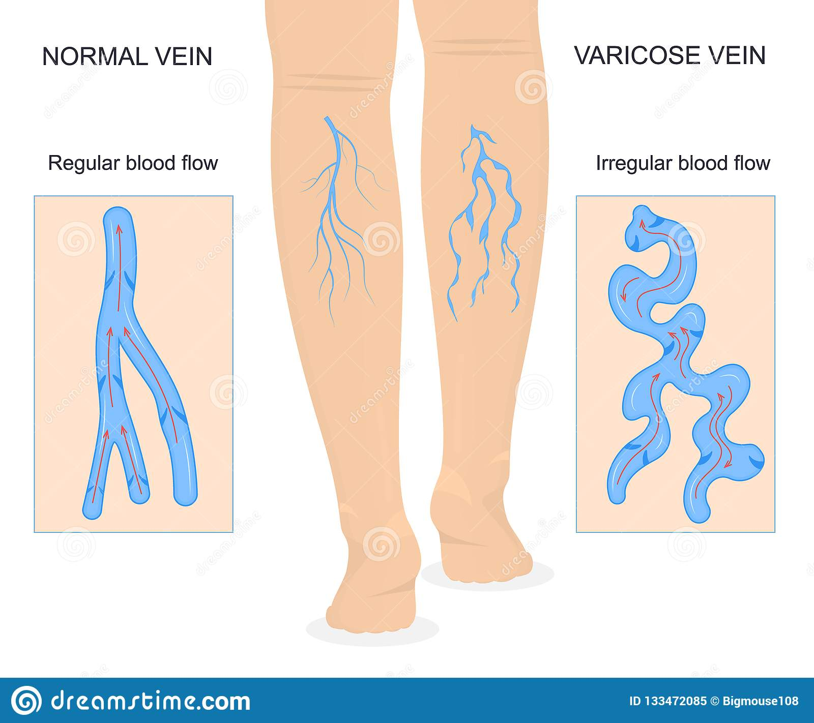 Varicose Veins Concept Banner Card With Elements Vector Stock
