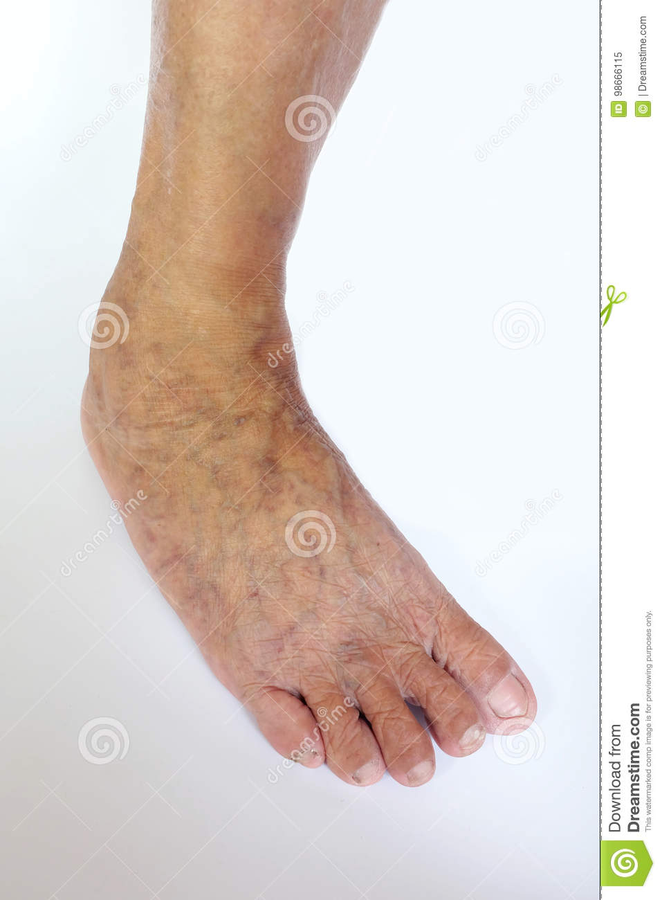Varicose Veins In The Feet And Legs Stock Image Image Of Patient