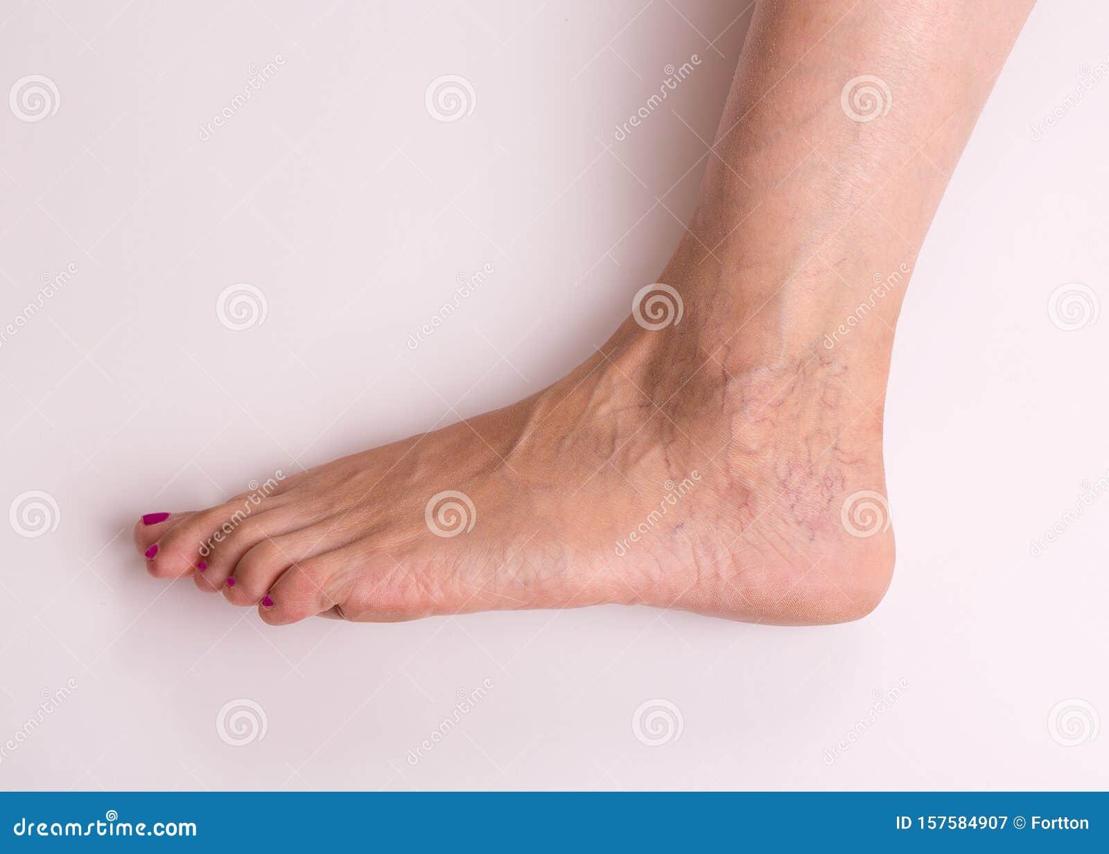 varicose foot start foto scleroterapia în vene varicoase