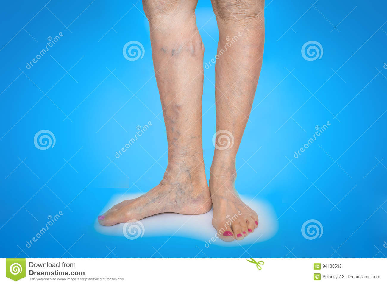Varicose Veins On A Female Legs Stock Photo Image Of People