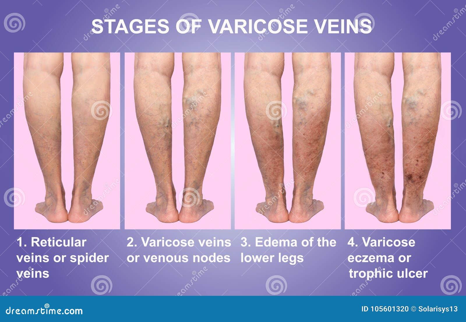 durerea picioarelor varicoselor