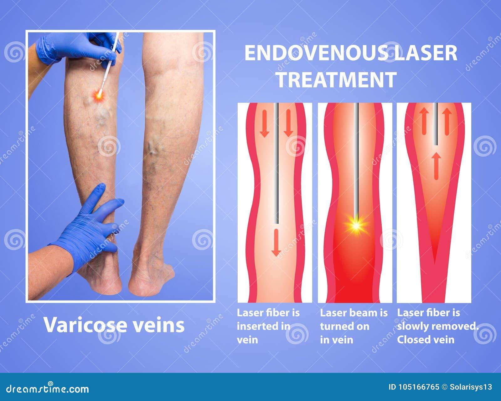 varicose laser surgery