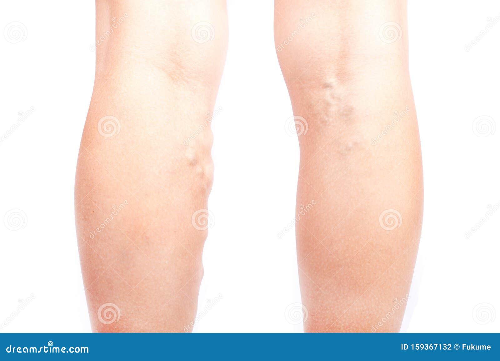tratamentul venelor varicoase în bishkek