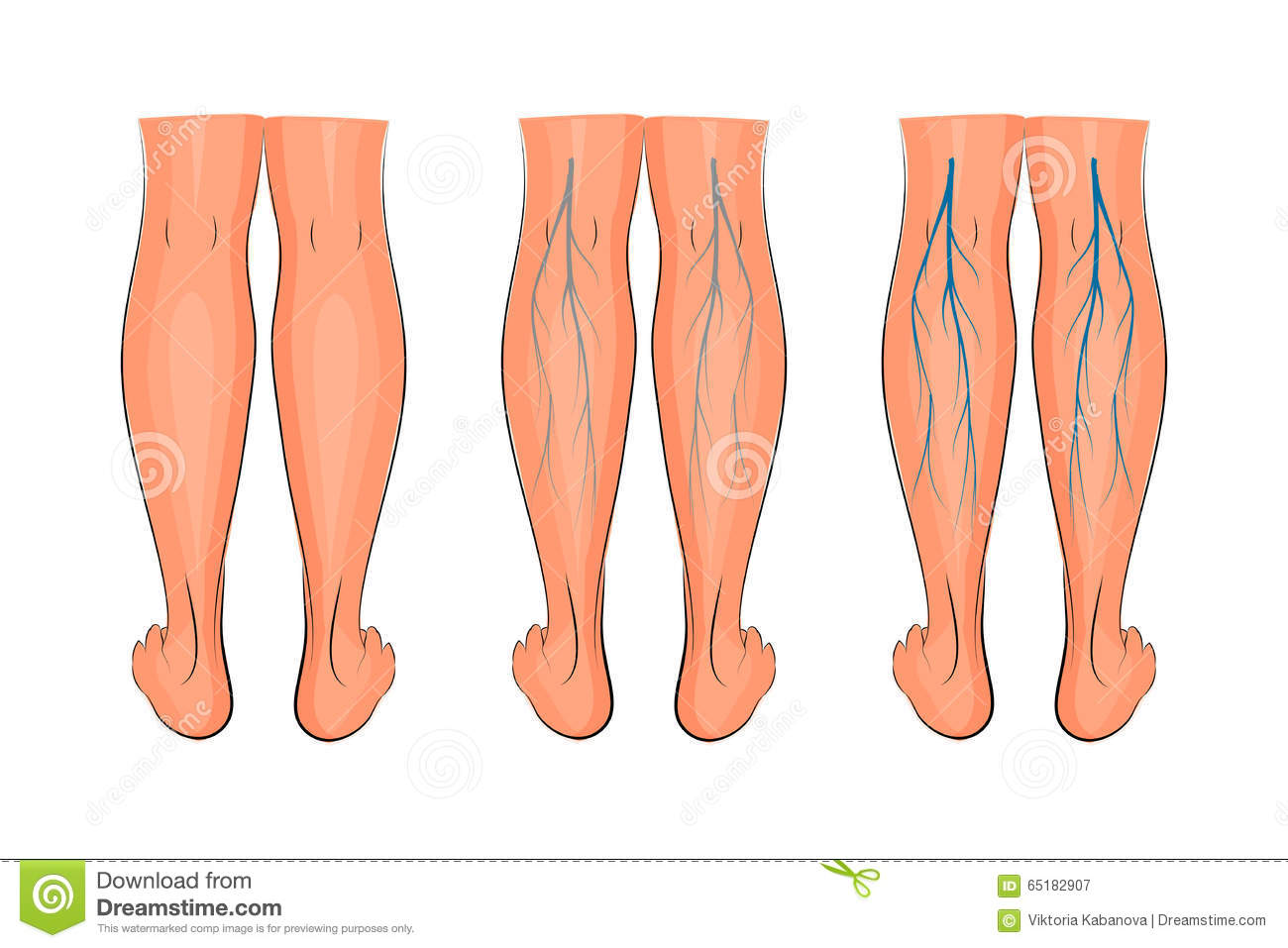 Varicose Veins Of The Lower Extremities Stock Vector - Illustration ...