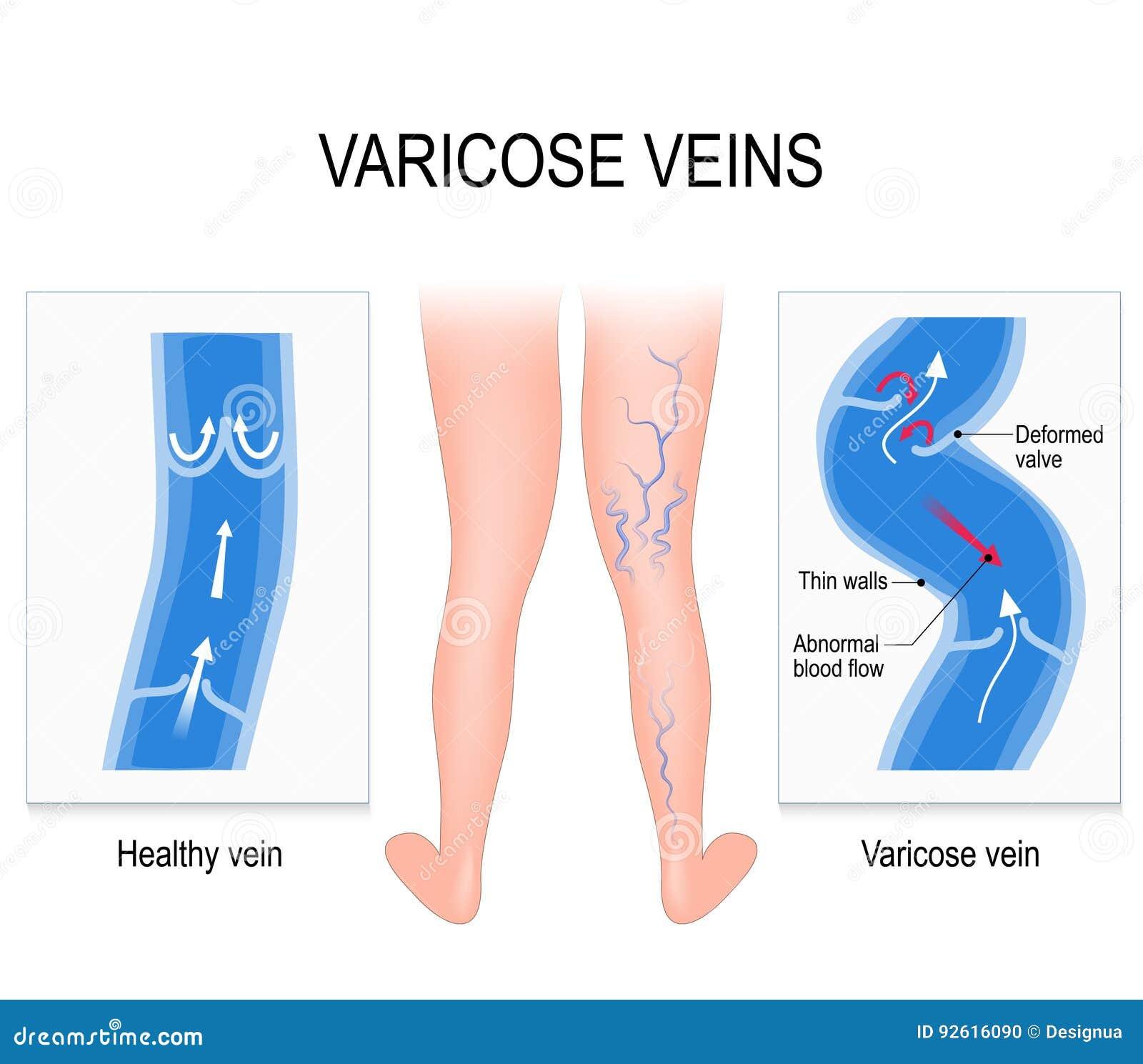 stomch ulcer diagram varicose veins. medical illustration stock vector ...