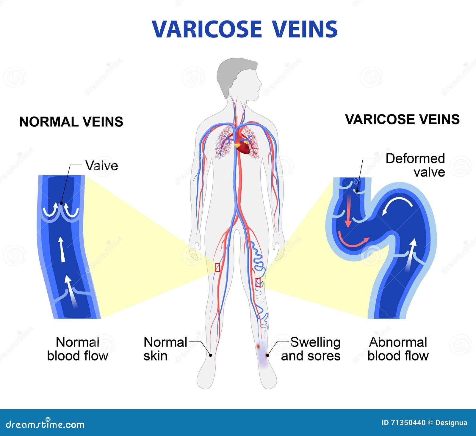 varicose veins medical illustration stock vector illustration of rh dreamstime com