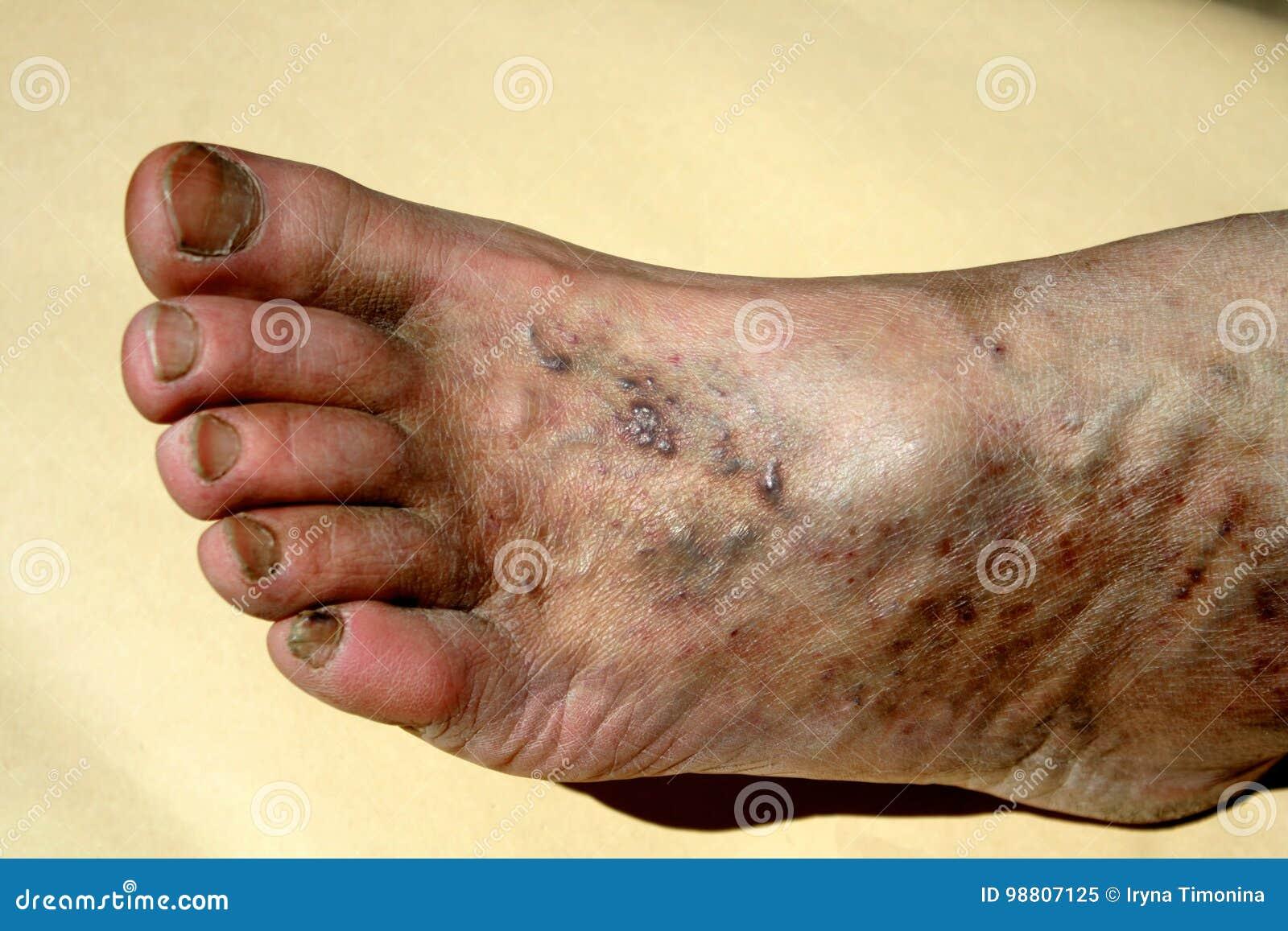 flatfoot și varicose vene