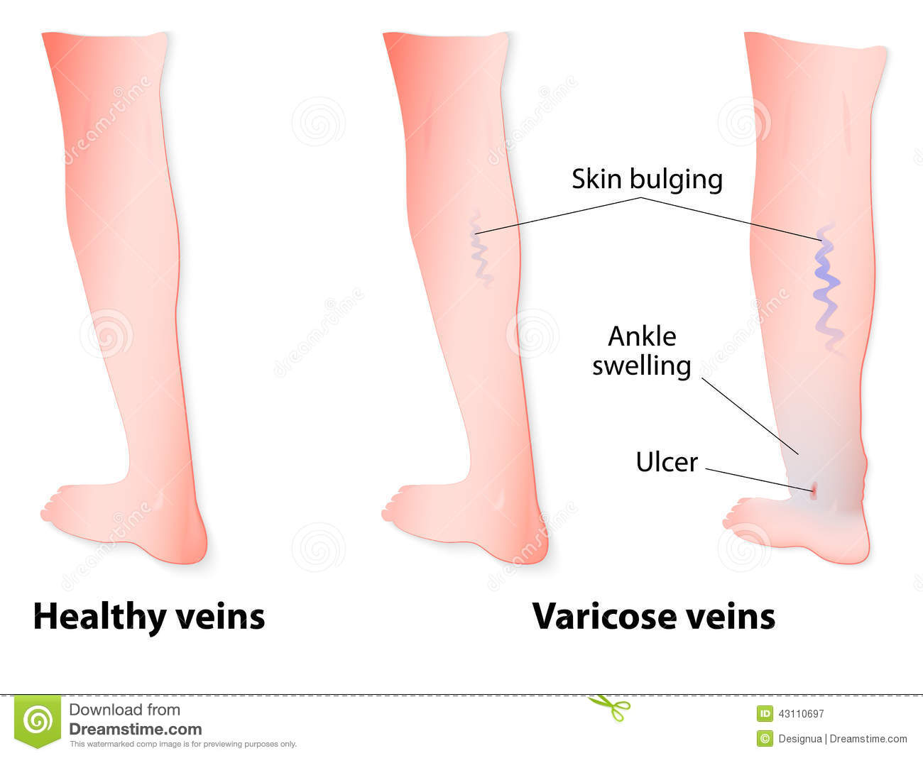 varicose veins stock vector image 43110697 Varicose Ulcers Symptoms Varicose Ulcer Treatment at Home