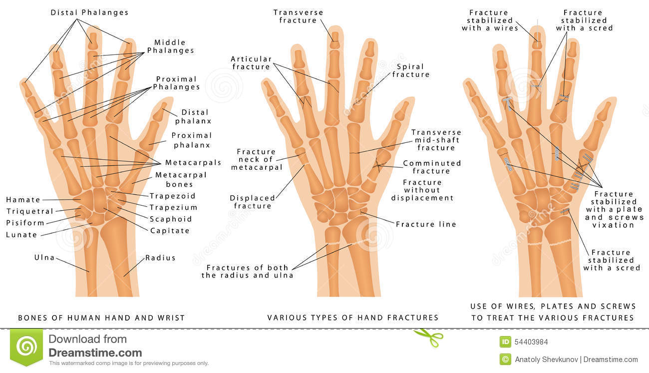 various types of hand fractures stock vector image 54403984 clip art fighting tiger clip art fighting tiger