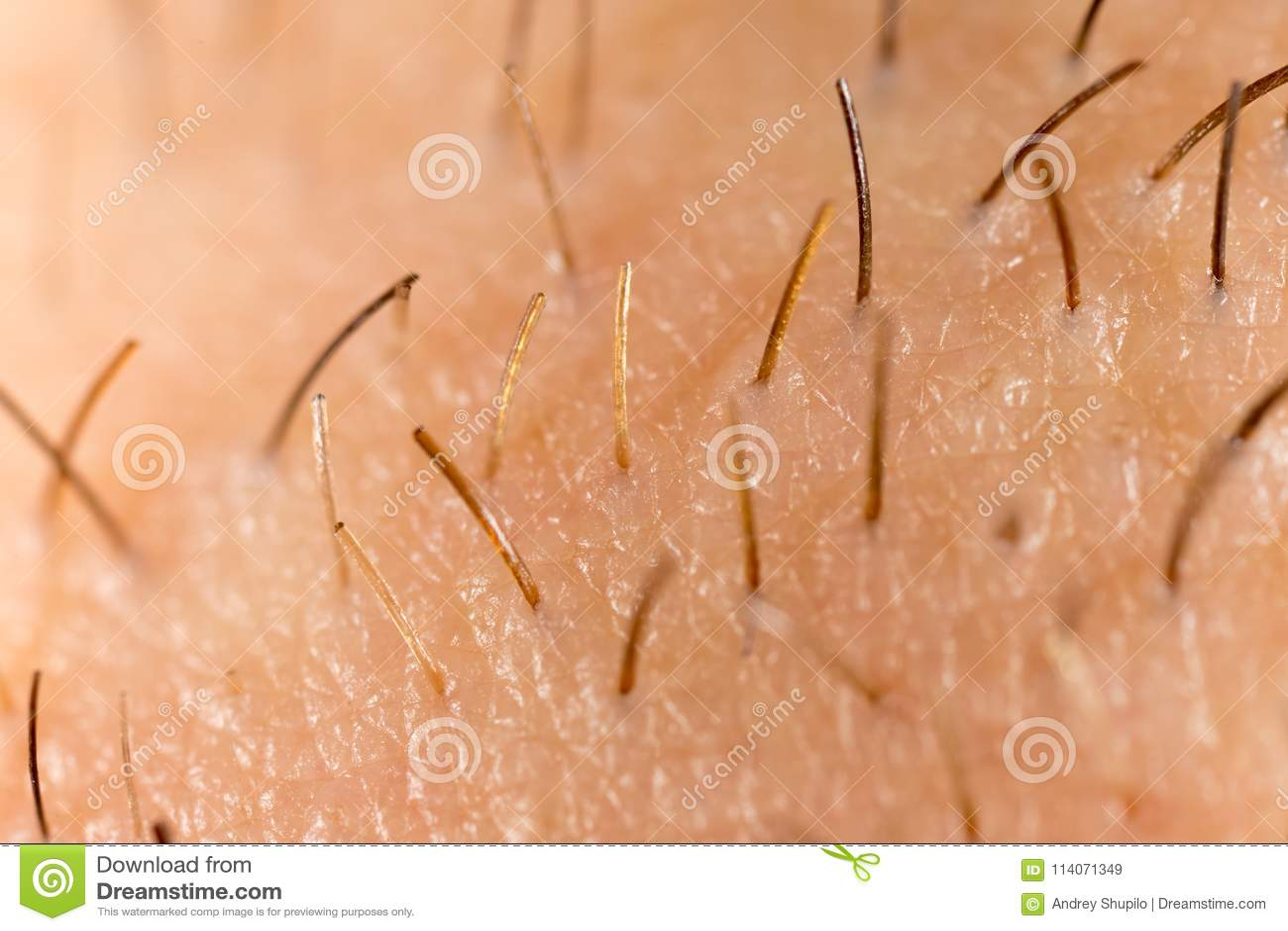 Varkenshaar op de baard van een mens