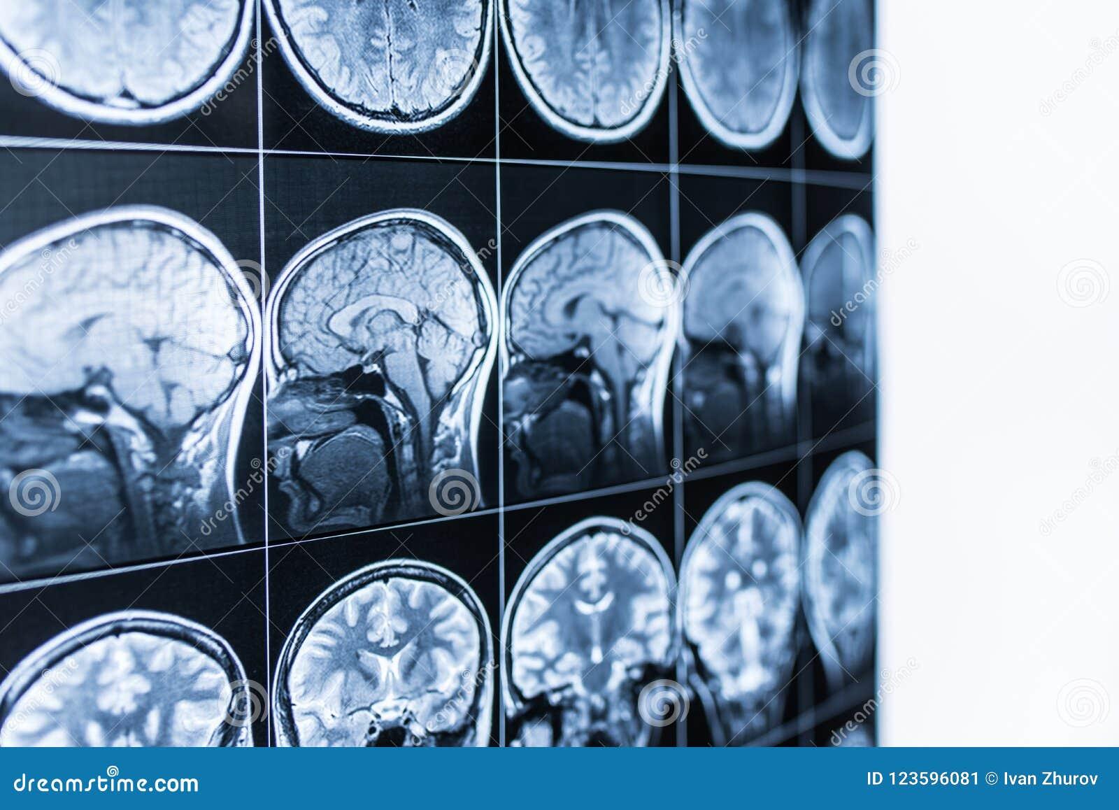 Varredura de MRI da cabeça e do cérebro de uma pessoa no defocus