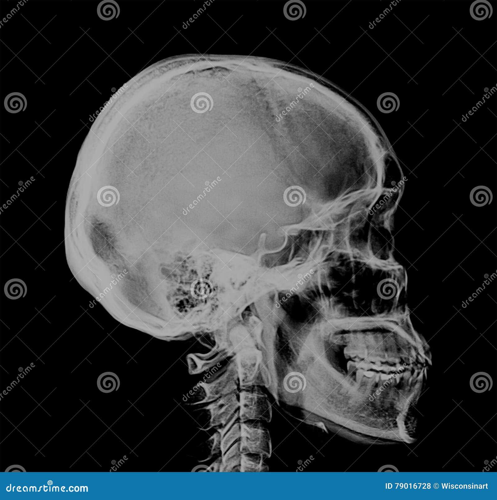 Varredura negativa do raio X humano do crânio